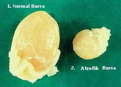 Gumboro Bursa Fabricius