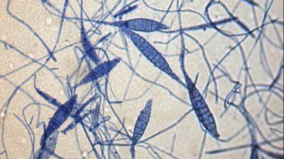 Kedi ve Köpeklerde Mikrosporozis