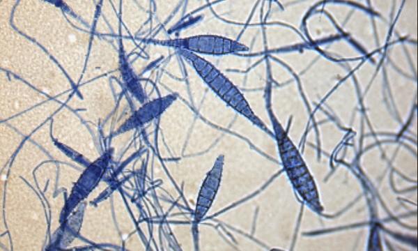 Microsporium canis